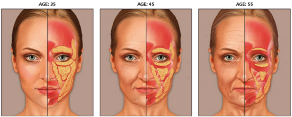 Ageing of the skin and face - Waterside Dental Care